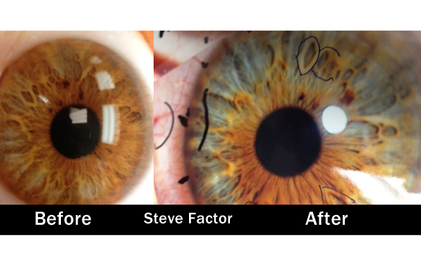 Eyes That Are Changing Colors With A Raw Vegan Diet