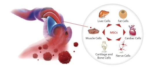 umbilcial-cord-stem-cell-therapy